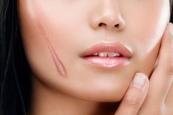 10 Phương pháp làm mờ sẹo cải thiện vùng da bị lão hóa