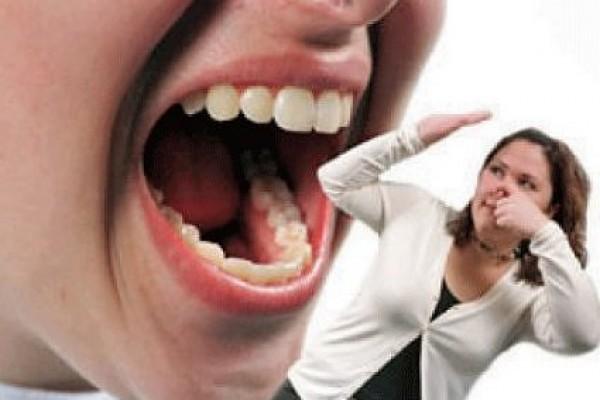 Nguyên nhân và cách khắc phục bị hôi miệng hiệu quả
