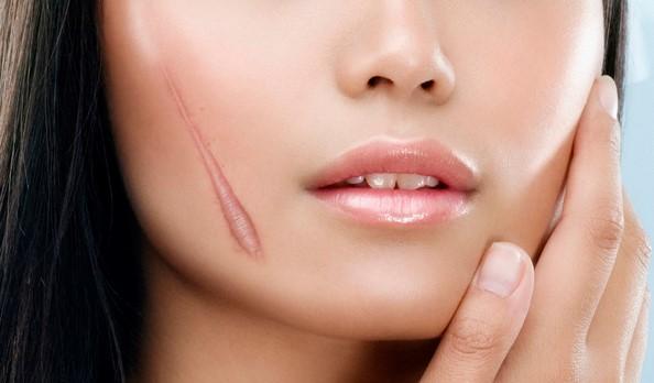 Cải thiện tình trạng sẹo hiệu quả và những bí quyết bạn cần biết
