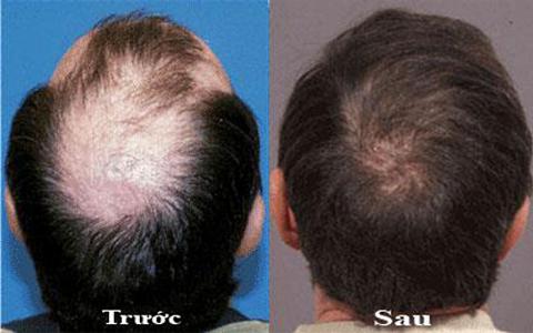 Kích thích mọc tóc với tinh dầu bưởi dưỡng tóc