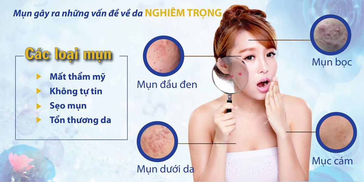 Trị mụn bằng tinh dầu có thật sự tốt cho da